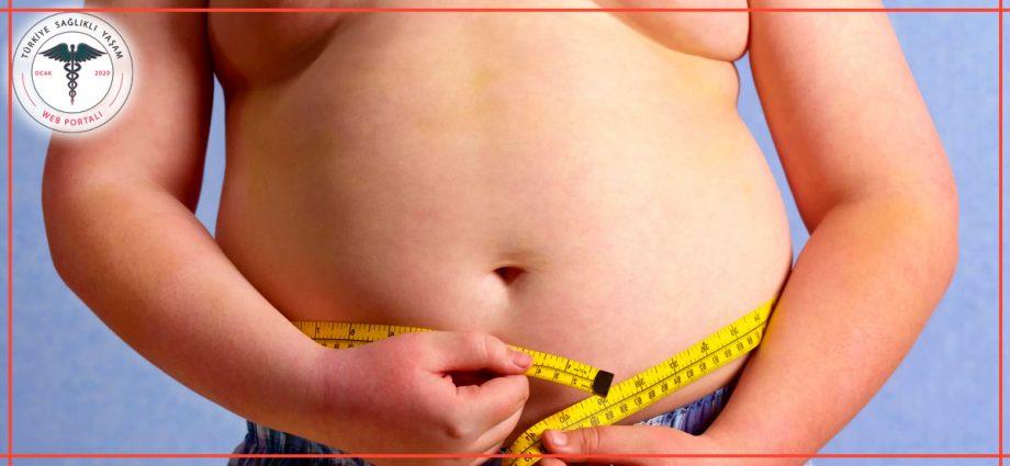 çocuklarda obezite, obez çocuk, obez, şişko,