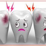 diş çürüğü, ikon diş çürüğü, diş çürüğü görseli, çocuklar için diş çürüğü,
